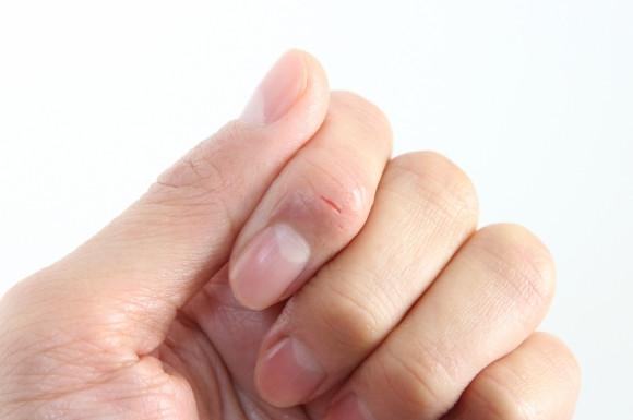 怪我をした指